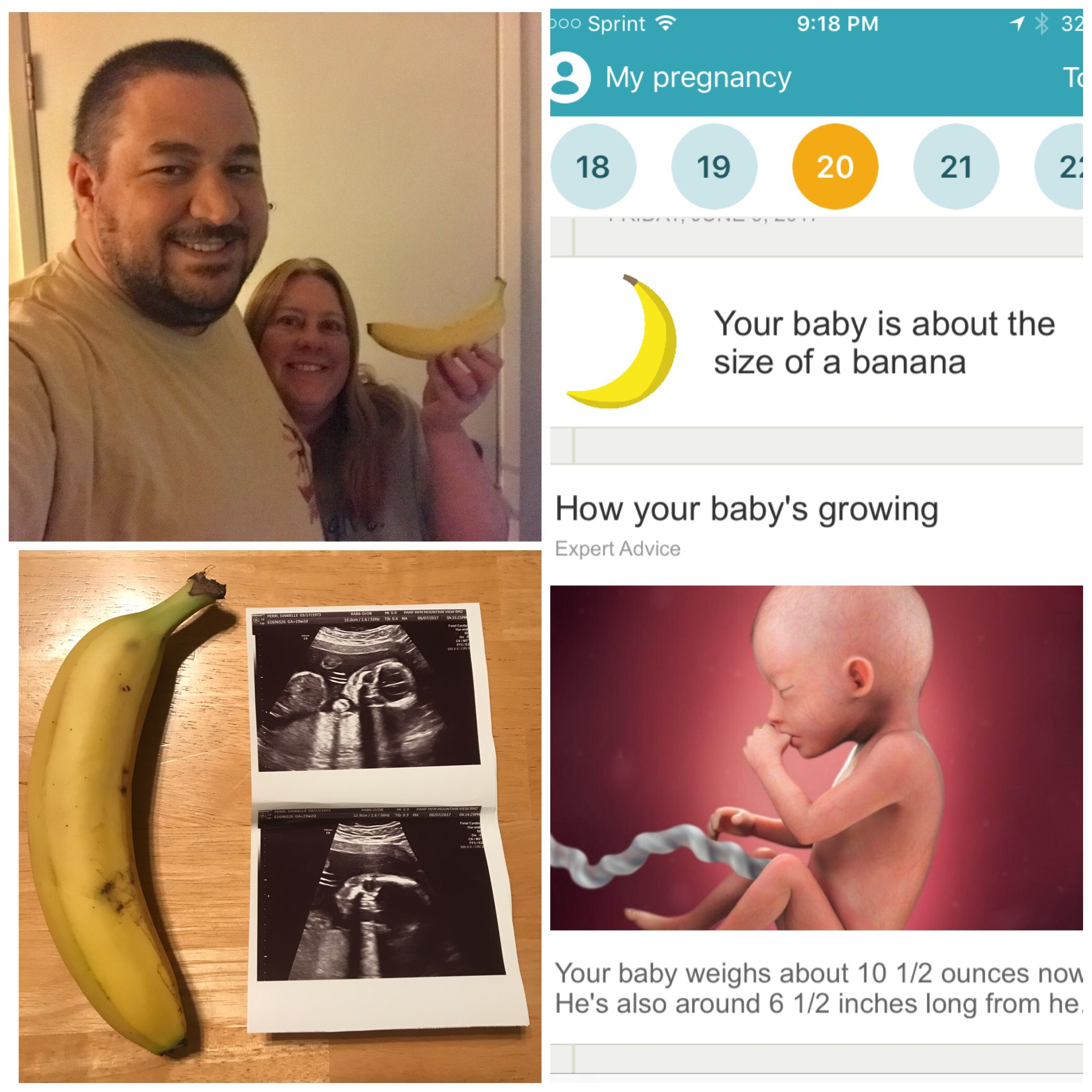 Week 20 – Size of a Banana – Over 40 First Time Mom